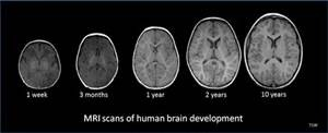 Brain development MRIs